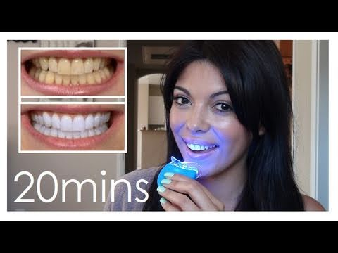 glam white teeth whitening kit elite reviews